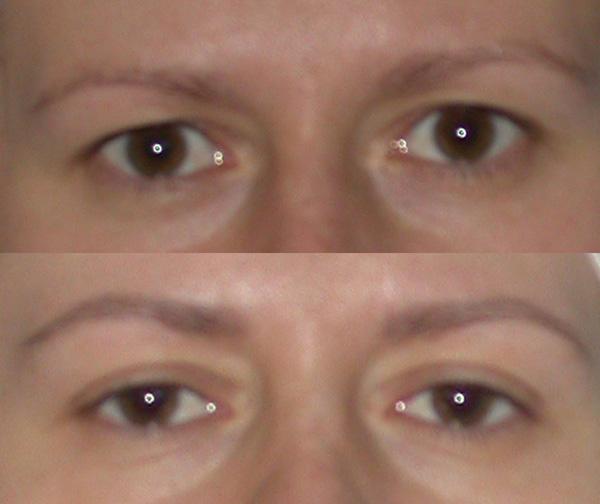 d51227906f9e 34 letnia pacjentka przed i miesiąc po plastyce powiek górnych