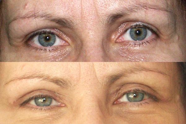 428ce869471d 46-letnia pacjentka przed i miesiąc po plastyce powiek górnych