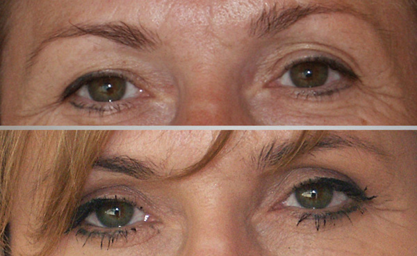168a49069199 44-letnia pacjentka przed i pół roku po plastyce powiek górnych